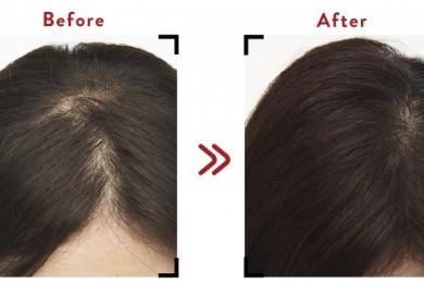 女性の薄毛・抜け毛対策におすすめ!実際に試してよかったヘアケアアイテム6選