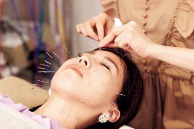美容鍼、育毛、骨格矯正を同時に施術!くすみ肌解消には「鍼もの美容」